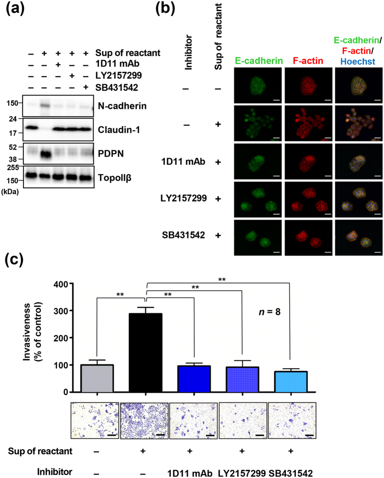 TGF-β/TGFβR signaling is involved in podoplanin-induced epithelial-mesenchymal transition in UM-UC-5 cells. ( a – c ) UM-UC-5 cells were treated with or without TGF-β1 neutralizing mAb (1D11 mAb) or TGFβR inhibitors (LY2157299 or SB431542) for 2 h, followed by incubation with supernatants of UM-UC-5-platelet reactants for 48 h. Morphological and physiological changes in treated cells were examined by immunoblotting ( a ), immunofluorescence staining ( b ) and invasion assay using a matrigel-coated transwell chambers ( c ). ( a ) Cell lysates were immunoblotted with antibodies to <t>N-cadherin,</t> claudin-1, podoplanin (PDPN, clone D2-40) and TopoIIβ. ( b ) Cells were stained for <t>anti-E-cadherin</t> (green), F-actin (red; phalloidin) and nuclear DNA (blue; Hoechst 33342). Scale bars represent 50 μm. ( c ) Cells were either left untreated or treated with supernatants of UM-UC-5-platelet reactants for 48 h. Next, 5 × 10 4 UM-UC-5 cells were added to the upper chambers of matrigel-overlaid membranes. After incubation for an additional 48 h at 37 °C, cells migrating through the membranes were fixed and stained with crystal violet (lower panels; scale bars represent 200 μm). Optical density (OD) of crystal violet extracted from cells was measured at 540 nm and presented as a percentage of the OD values of control cells. All data are shown as means ± standard deviation (SD, n = 8). **P