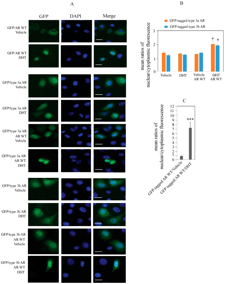 GFP-tagged type 3 AR proteins localize to both the cytoplasm and nuclei of AR-negative prostate cancer PC3 cells under androgen-depleted conditions; co-expression with wild-type AR enhances the nuclear localization of type 3 AR in the presence of DHT. ( A ) Fluorescence images of PC3 cells transfected with GFP-tagged wild-type AR (GFP/AR WT), GFP/type 3a AR, GFP/type 3b AR, or co-transfection of untagged AR WT with GFP-tagged type 3a or 3b AR (green) and DAPI (blue) after 4 h treatment with vehicle or 10 nM DHT. Scale bars represent 20 µm; ( B ) Average mean fluorescence ratio of nuclear:cytoplasmic GFP/type 3a AR or GFP/type 3b AR in vehicle- or DHT-treated PC3 cells; ( C ) Average mean fluorescence ratio of nuclear:cytoplasmic GFP/AR WT in vehicle- or DHT-treated PC3 cells. Fluorescence from a total number of 20–35 cells per condition was quantified as described under Methods. Error bars represent SEM. Statistical analysis was carried out by GraphPad Prism 6 (GraphPad Software, La Jolla, CA, USA) using two-way ANOVA ( B ) or independent t -test ( C ). p