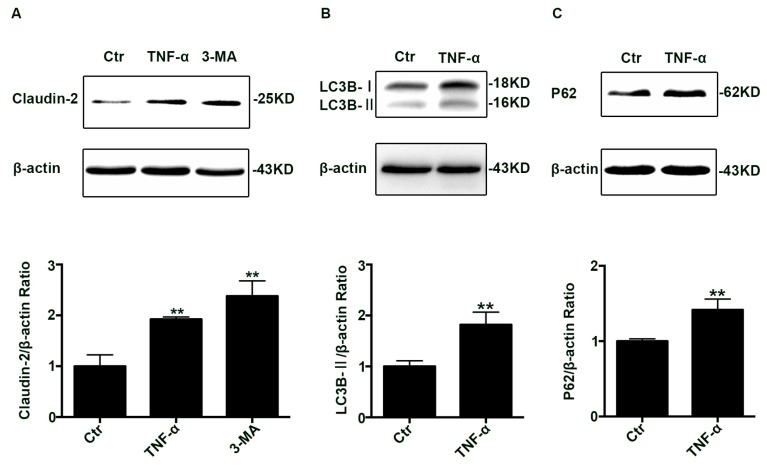 Change of claudin-2, LC3B-II, and P62 protein in TNF-α treated Caco-2 cell monolayers. ( A ) Western blotting analysis of caludin-2 in Caco-2 cell monolayer after TNF-α (10 ng/mL) administration or 3-MA (5 mM) treatment for 48 h. ( B , C ) Western blotting analysis of LC3B-II and P62 in Caco-2 cells after TNF-α (10 ng/mL) administration for 48 h. β-actin was used as an internal control. Data were shown as mean ± SD and replicated three times. ** p