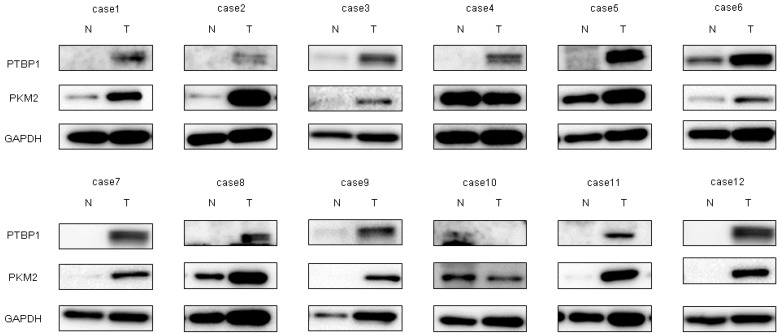 Increased expression levels of polypyrimidine tract-binding protein 1 (PTBP1) and pyruvate kinase muscle isoform 2 (PKM2) were demonstrated in clinical tumor samples from bladder cancer patients. PTBP1 and PKM2 expression in 12 bladder cancer clinical samples as determined by Western blot analysis. Details of the characteristics of the samples are given in Table 1 . GAPDH was used as the control.