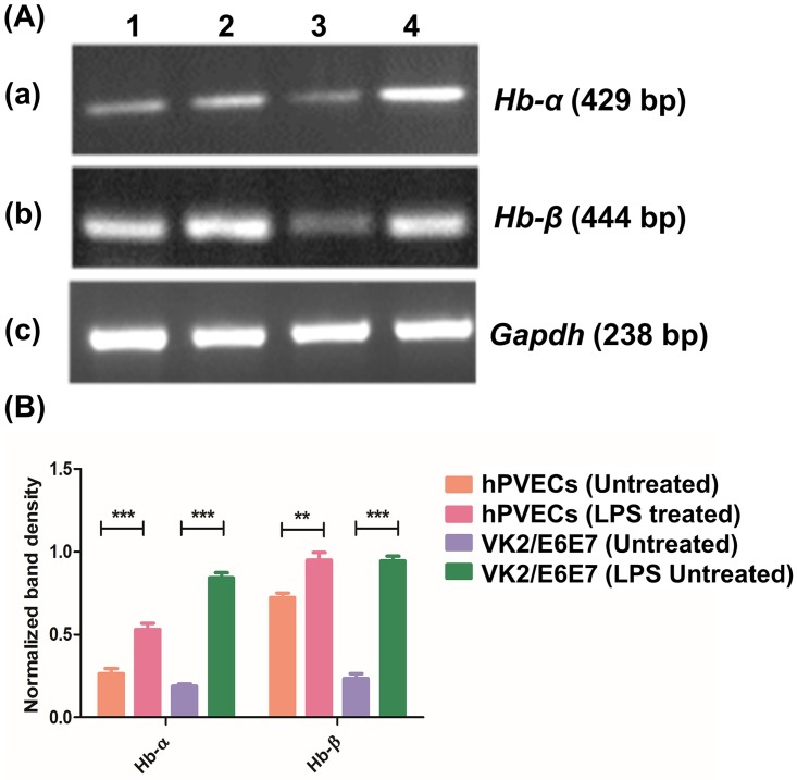 Hb-α and Hb-β expression in hPVECs and VK2/E6E7 cells. (A) RT-PCR analysis; 1: Untreated hPVECs, 2: hPVECs treated for 6 hrs with LPS (10 μg/ml), 3: Untreated VK2/E6E7 cells and 4: VK2 cells treated with LPS (10 μg/ml) for 6 hrs. Loading control, Gapdh (238 bp) expression in hPVECs. The gels shown are one of the representative pictures from three independent experiments performed on three different days. (B) Densitometric analysis of bands from RT-PCR amplification products of Hb-α and Hb-β mRNAs shown in figure-5A.