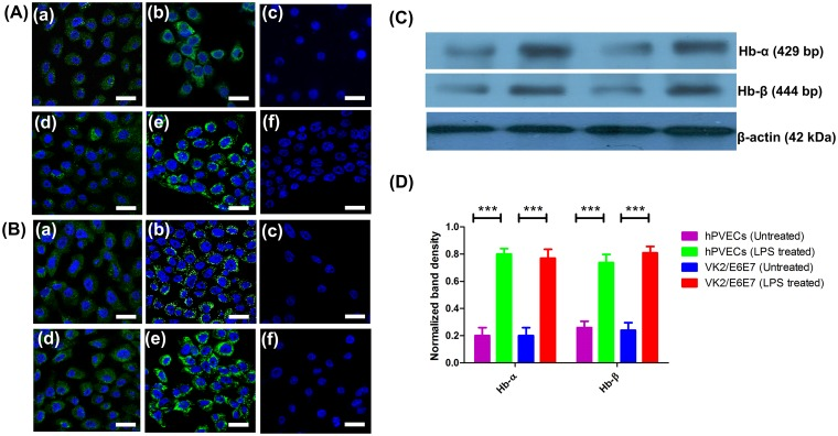 Hb-α and Hb-β expression in hPVECs and VK2/E6E7 cells at protein level. (A, B). Immunofluorescence localization of Hb-α and Hb-β. Cytoplasmic localization (green) of Hb-α (A) and Hb-β (B) was observed in hPVECs (a,b,c) and VK2/E6E7 cells (d,e,f). DAPI stained nucleus (blue). a, d: Untreated cells; b,e: LPS treated cells; c,f: Primary antibody controls did not show Hb-α and Hb-β localization. Expression was significantly up-regulated when hPVECs and VK2/E6E7 cells stimulated with LPS (10 μg/ml for 6 hrs) (b, e). The figure shown is one of the representative pictures from three independent experiments performed on three different days (Mag. 63X). (C). Western blot analysis of Hb-α and Hb-β expression in hPVECs and VK2/E6E7 cells. β-actin (42 kDa) (loading control) expression in hPVECs (1: Untreated hPVECs, 2: hPVECs induced with LPS, 3: Untreated VK2/E6E7 cells and 4: VK2/E6E7 cells induced with LPS). (D). Densitometric analysis of bands from western blot of Hb-α and Hb-β shown in Fig 7C.