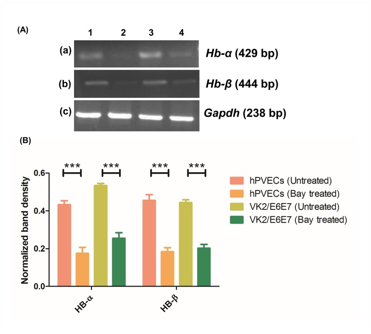 RT-PCR analysis of Hb-α and Hb-β in presence of LPS and Bay 11–7082. (A) Hb-α (429 bp) (a) and Hb-β (444 bp) (b) expression was observed in hPVECs (1,2) and VK2/E6E7 cells (3,4) before and after the treatment with LPS (10 μg/ml for 6 hrs) and Bay 11–7082 (5μM for 24 hrs). LPS-induced (a1, a3, b1, b3), Bay 11–7082 treated (a2, a4, b2, b4) are shown. Expression of Hb-α and Hb-β was up-regulated in LPS-induced cells, whereas Bay 11–7082 attenuated this expression (c) Gapdh (238 bp) was used as loading control. The gels shown are the representative pictures from three independent experiments. (B). Densitometric analysis of RT-PCR bands shown in Fig 12A. Expression of both Hb-α and Hb-β was elevated in LPS-stimulated cells. In contrast, Bay 11–7082 attenuated the expression of Hb-α and Hb-β .