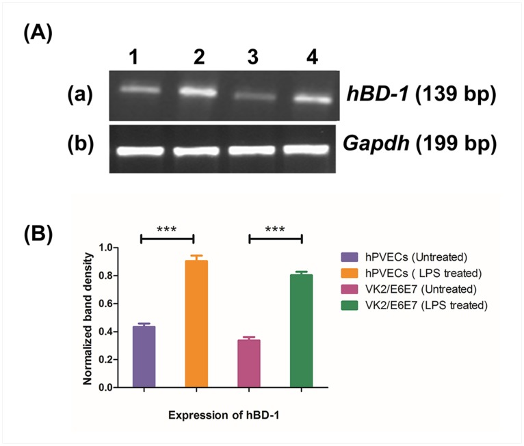 RT-PCR analysis of human-β defensin-1 ( hBD-1 ). (A) mRNA expression of hBD1 (139bp) was observed in un-stimulated (a1, a3), LPS stimulated (a2, a4) in hPVECs (a1, a2) and VK2/E6E7 cells (a3, a4). Cells were seeded at a density of 10 6 /well in a 24-well plates and treated with LPS (10 μg/ml for 6 hrs). Expression of hBD1 mRNA was up-regulated in LPS-induced cells. Representative image of RT-PCR analysis of hBD-1 mRNAs expression is shown. Gapdh confirmed roughly equivalent loading of RNA samples. 1: hPVECs (Unstimulated); 2:hPVECs induced with LPS; 3:VK2/E6E7 cells (Unstimulated); 4:VK2/E6E7 cells stimulated with LPS (10μg/ml). (B). Densitometric analysis of bands from RT-PCR amplification products of hBD1 mRNA reported in Figure 13A. Expression of hBD-1 was increased in LPS-stimulated hPVECS and VK2/E6E7 cells.