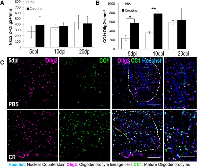 Creatine administration enhances oligodendrocyte restoration after focal spinal cord demyelination. A , B , Quantification of immunostaining for Nkx2.2 + Olig2 + OPCS per square millimeter ( A ) and CC1 + Olig2 + oligodendrocytes per square millimeter ( B ) at 5, 10, and 20 dpl in mice treated with PBS or 25 ng of creatine (CR). n = 3 mice/condition; Student's t test. C , Representative immunostaining of mature oligodendrocytes double positive for Olig2 (magenta) and CC1 (green) in PBS and CR lesions at 5dpl. Data are represented as mean ± SEM. Scale bars, 100 μm. Brightness and contrast were adjusted for visualization. n = 3 mice/condition; * p