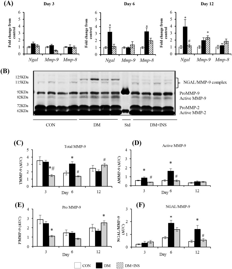 The effect of diabetes on <t>NGAL</t> and <t>MMP-9</t> expression in PVC implant cells and wound fluids at days 3, 6 and 12. (A) NGAL, MMP-9 and MMP-8 mRNA by qRT-PCR, (B) A representative zymogram of wound fluid at day 6, (C-E) Group data for zymography results expressed as Area Under Curve (AUC; determined from band intensity) (C) total MMP-9 (TMMP-9 = proMMP-9 +active MMP-9), (D) active MMP-9, (E) proMMP-9 and (F) NGAL/MMP-9 complex according to molecular weight. Results are from Control (CON) diabetic (DM) and Insulin treated DM (DM+INS) animals and are expressed as Mean ± SEM *P