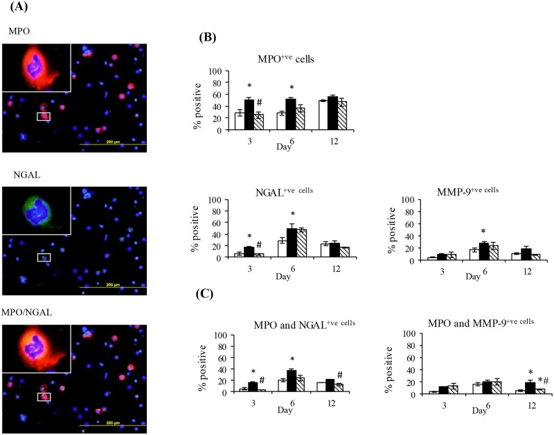 The effect of diabetes on PVC implant cell expression of MPO, NGAL and MMP-9 and the co-localisation of MPO with NGAL or MMP-9. (A) Representative day 6 images of implant cells stained with MPO and NGAL either alone or in combination. Group data for percentage of implant cells expressing (B) MPO, NGAL, or MMP-9 or (C) MPO in combination with either NGAL or MMP-9. Data are from the cellular fraction of implants obtained from Control (CON) Diabetic (DM) and Insulin treated DM (DM+INS) animals at days 3, 6 and 12 post implantation. Results are expressed as Mean ± SEM. * P