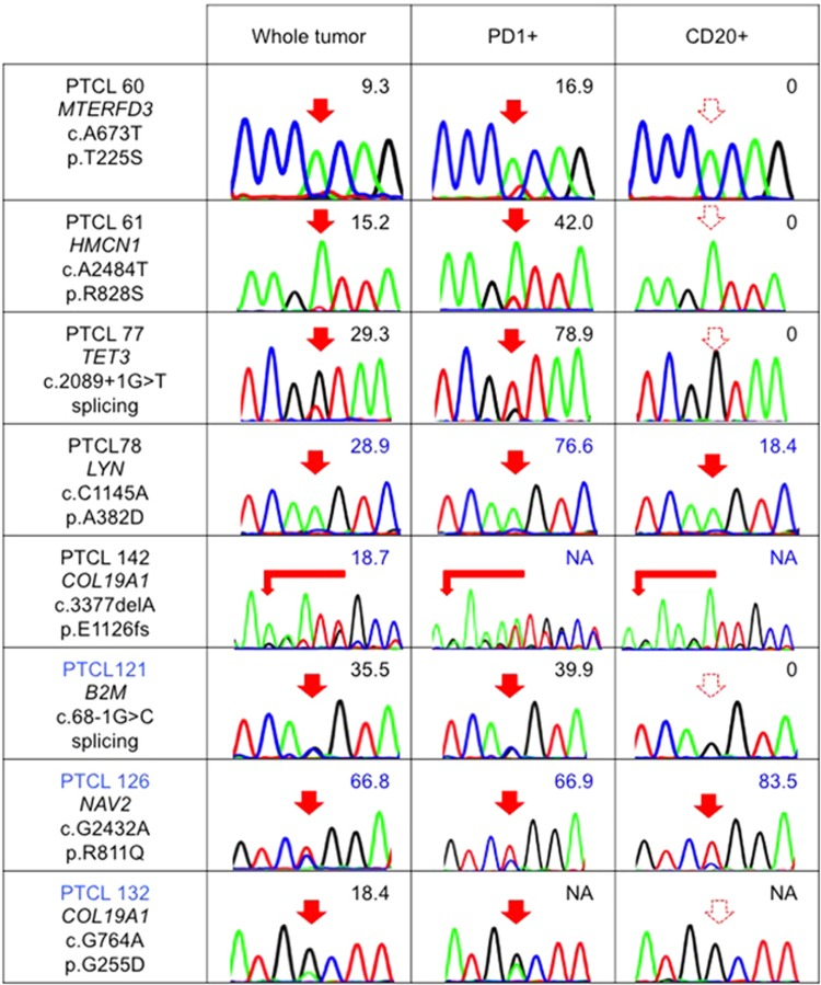 Distribution of newly identified gene mutations in nodal T-cell lymphomas. The results of Sanger sequencing and/or amplicon-based deep sequencing for some newly identified gene mutations in whole tumor, PD1+ cells and CD20+ cells are shown. The numeric values indicate allele frequencies of mutations defined by deep sequencing. The AITL samples are indicated in black letters. The PTCL-NOS/nodal PTCL with TFH phenotype sample is indicated in blue letters. NA, not analyzed by deep sequencing. The filled and dashed red arrows indicate mutations and no mutations, respectively.