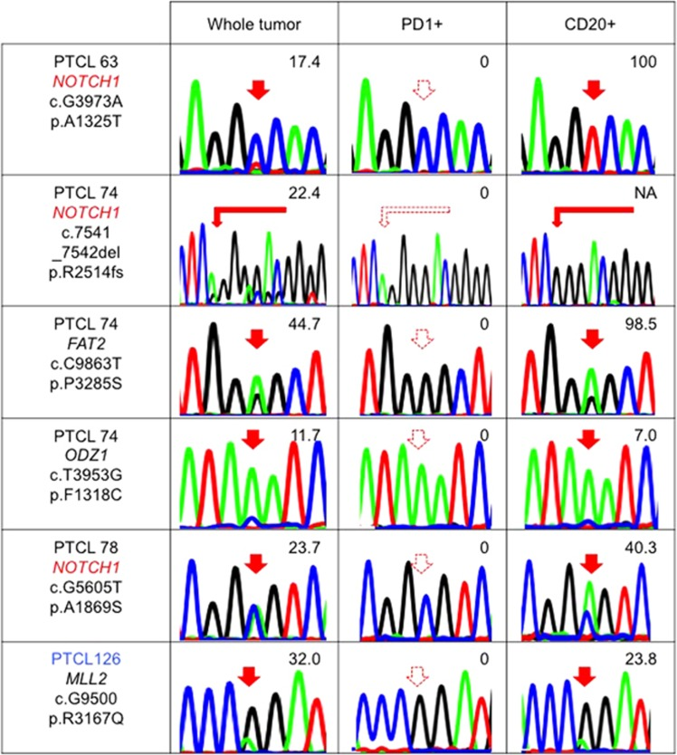 B-cell-specific mutations in nodal T-cell lymphomas. The results of Sanger sequencing and/or amplicon-based deep sequencing for some newly identified gene mutations in whole tumor, PD1+ cells and CD20+ cells are shown. The numeric values indicate allele frequencies of mutations defined by deep sequencing. The AITL samples are indicated in black letters. The PTCL-NOS/nodal PTCL with TFH phenotype sample is indicated in blue letters. NA, not analyzed by deep sequencing. The filled and dashed red arrows indicate mutations and no mutations, respectively. NOTCH1 is marked by red letters because this is repetitive.