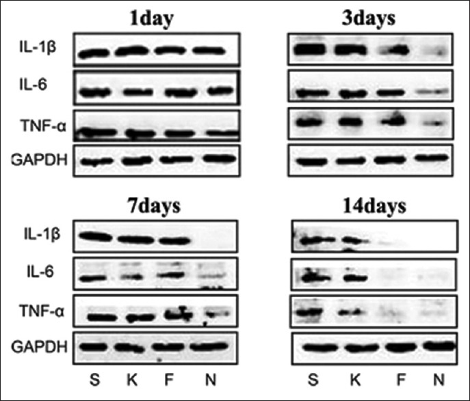 Effects of 15d-PGJ2 on IL-6, IL-1β, and TNF-α protein expression in the peri-defect tissues. A 5 mm × 1.5 mm transcortical defect was prepared through the cortical bone into the bone marrow in the midshaft area in rats. Protein expression levels of IL-6, IL-1β, and TNF-α in groups treated with saline (S), empty nanocapsules (K), free 15d-PGJ2 (F), and 15d-PGJ2-NC (N) were analyzed by Western blotting on days 1, 3, 7, and 14. 15d-PGJ2-NC: 15-Deoxy-Δ12,14-prostaglandin J2 nanocapsules; IL-1β: Interleukin-1 beta; IL-6: Interleukin-6; TNF-α: Tumor necrosis factor-alpha; GAPDH: Glyceraldehyde-3-phosphate dehydrogenase.