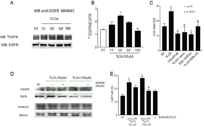 GPBAR1 activation by TLCA in MKN45 cells causes EGFR phosphorylation A. Cells treated with 100 μM TLCA were harvested at the indicated time. Cell lysates were immunoblotted with antibodies against phosphorylated EGFR (pEGFR) and total EGFR as indicated. B. Quantitative densitometry of the protein expression of the phosphorylated EGFR and total form. *