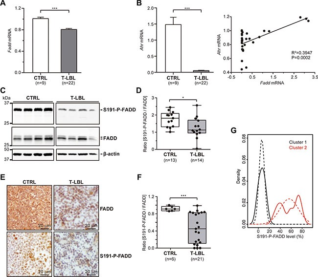 FADD and P-FADD levels in T-LBL ( A , B ) Fadd (A) and Ahr (B) mRNA levels were determined in healthy thymuses (CTRL) and T-cell lymphoblastic lymphoma samples (T-LBL) by quantitative RT-PCR. The results were normalized using the 2 −ΔΔC T method, referring Fadd or Ahr expression to those of G6pd and Hprt , and referenced to the control group. ( C – F ) Total FADD protein and S191-P-FADD levels were determined in CTRL and T-LBL groups by Western blot (C, D) and Immunohistochemistry (E, F). Representative images are shown for the WB (C) and IHC (E) experiments. WB images in (C) are cropped in favor of conciseness. The box-and-whisker plot analyses of the ratio [S191-P-FADD/FADD] for all the samples are shown for the WB (D) and IHC (F) experiments, indicating the statistical significance of the comparisons. ( G ) Kernel density plot showing T-LBLs density for S191-P-FADD levels (continuous line) and standard normal distribution of each cluster (dashed line). * P