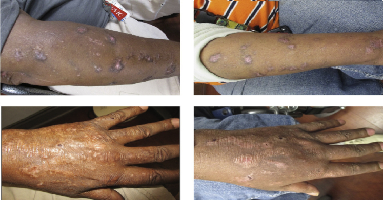 Lichen planus. Photographs taken 6 months before initiation of therapy ( left ) and 1 month after initiation of <t>ledipasvir-sofosbuvir</t> ( right ) show marked visible improvement of cutaneous lesions.