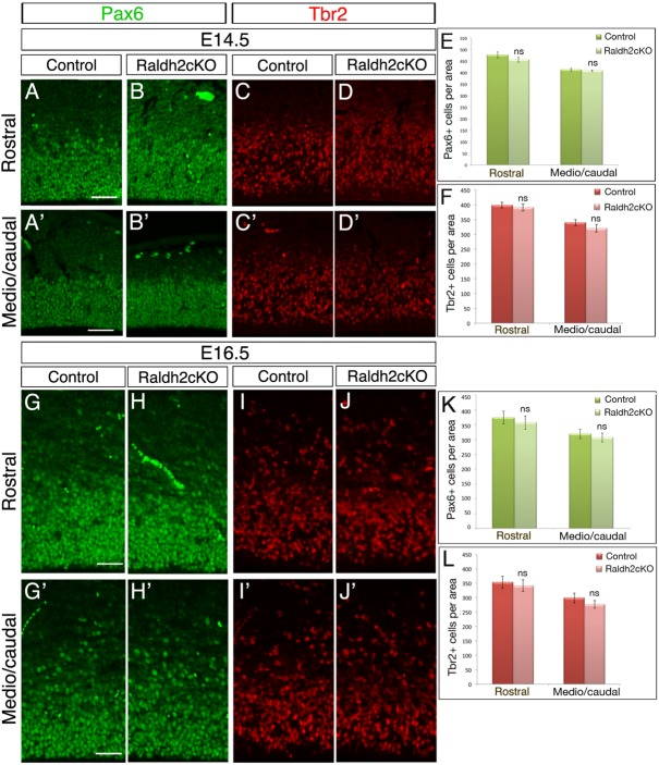 Raldh2cKO does not affect cortical NPCs. (A-D′) Immunolabellings on brain sections from E14.5 control and Raldh2cKO animals for Pax6 (A-B′) or <t>Tbr2</t> (C-D′) at rostral (A-D) and more caudal levels (A′-D′) used for quantification. (G-J′) Immunolabellings on brain sections from E16.5 control and Raldh2cKO animals for Pax6 (G-H′) or Tbr2 (I-J′) at rostral (G-J) and medial levels (G′-J′) used for quantification. (E) Quantification of Pax6-positive cells at E14.5; rostrally: 477.13±13.10 for control and 456±10.48 for Raldh2cKO; caudally: 412.73±6.14 for control and 408.2±3.49 for Raldh2cKO. (F) Quantification of Tbr2-positive cells at E14.5; rostrally: 398.66±9.23 for control and 390.47±11.37 for Raldh2cKO; caudally: 339.47±9.89 for control and 320.13±12.49 for Raldh2cKO. (K) Quantification of Pax6-positive cells at E16.5; rostrally: 374.06±21.71 for control and 357.26±22.71 for Raldh2cKO; caudally: 319±16.42 for control and 306.99±15.28 for Raldh2cKO. (L) Quantification of Tbr2-positive cells at E16.5; rostrally: 353.2±20.93 for control and 341.2±20.23 for Raldh2cKO; caudally: 298.46±16.96 for control and 276.66±13.27 for Raldh2cKO. Data presented as mean±s.e.m.; n =5 brains; ns, not significant by two-tailed Student's t -test. Scale bars: 50 μm.