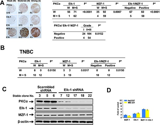 """Correlations between PKCα expression and Elk-1/MZF-1 expression in breast cancer ( A ) Immunohistochemical analyses and correlations of PKCα and Elk-1/MZF-1 expression in human breast cancer. The left panel shows representative staining results for samples scored by visual assessment as """"weak,"""" """"moderate,"""" or """"strong"""" according to staining intensity. The right panel depicts the numbers of each group classified based on PKCα, Elk-1, or MZF-1 staining intensity or grade. Moderate or strong expression of the genes of interest was given a positive rating, otherwise, a negative rating. Clinical characteristic grades of I, II, and III were obtained from US Biomax Inc. * P"""