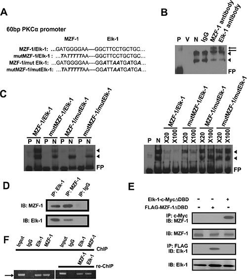 Elk-1/MZF-1 complex binds to the promoter region of PKCα to upregulate its protein expression ( A ) Specific Elk-1/MZF-1 binding sequence at the PKCα promoter in which one of the wild-type (WT) and three of the mutated sequences were designed. Black italics denote mutated sequence. ( B ) Specific binding activities of Elk-1/MZF-1 at the PKCα promoter, as visualized by EMSA. Biotin-labeled WT probes were incubated with MB-231 cell nuclear extracts and IgG/Elk-1/MZF-1 antibodies, and the reaction was resolved on a non-denaturing polyacrylamide gel. DNA–protein complexes are denoted by black arrowheads, and the two supershifted bands are denoted by black arrows. P: probe only; V: nuclear extract only; N: nuclear extract plus probe; FP: free probe. ( C ) Verification of the specific binding activities of Elk-1/MZF-1 by a competitive assay. EMSA of biotin-labeled WT or mutated oligonucleotide probes (left panel) and competition EMSA of biotin-labeled oligonucleotides with unlabeled WT or mutated oligonucleotides in 20-fold to 100-fold molar excess (right panel) are shown. ( D ) Co-IP assay of the interaction between endogenous MZF-1 and Elk-1 in MB-231 cells. Protein extracts were IP with an anti-MZF-1 antibody or anti-Elk-1 antibody/control rabbit IgG, as indicated. The resulting immunoprecipitates were resolved by SDS-PAGE and IB with both antibodies sequentially. ( E ) Interaction between MZF-1 and Elk-1 in MB-231 cells was detected by transfection of 5 μg of either FLAG-MZF-1ΔDBD or Elk-1-c-MycΔDBD to determine the sequence requirements for protein binding. Protein extracts were IP and IB with the indicated antibodies. ( F ) Confirmation of interactions between MZF-1 and Elk-1 and DNA binding activity by ChIP and Re-ChIP assays. In the ChIP assay, chromatin was pulled down with IgG, Elk-1, and MZF-1 antibodies. In the Re-ChIP assay, the pulled-down chromatin was incubated with anti-Elk-1 antibodies, followed by anti-MZF-1 antibodies; the sequence was then reversed. T