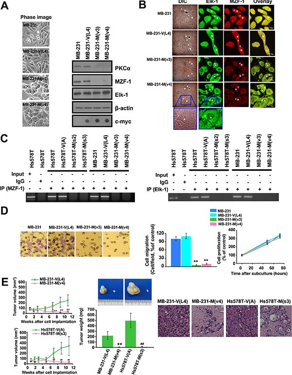 """Disrupting the interaction between Elk-1 and MZF-1 decreases PKCα expression, drug resistance and malignant phenotypes ( A ) Changes in morphology and gene expression in MZF-1 60– 72 construct-transfected stably cloned MB-231 cells. β-actin was used as a control, and c-Myc was used as a marker for transfected cells. ( B ) Confocal microscopy showing the distribution of the Elk-1 and MZF-1 proteins. Cells were stained with antibodies against Elk-1 and MZF-1, followed by the appropriate FITC- or rhodamine-conjugated secondary antibodies. Confocal slices of 0.5 and 0.6 μm thicknesses were obtained, and images were obtained focusing the center of the nucleus. """"N"""" denotes the nucleus; """"C"""" denotes the cytosol. ( C ) ChIP assays indicating the binding activity of endogenous Elk-1 and MZF-1 to the PKCα promoter in various cells. The assays were performed using an MZF-1 (left panel) or Elk-1 (right panel) antibody. ( D ) Visualization and quantification of cell migration and proliferation of modified MB-231 cells. ( E ) Tumor growth in nude mice after xenografts of modified MB-231 and Hs578T cells (left panels). Tumors removed from the mice were weighed (middle images and graph) and sliced before histological examination (right images). ** p"""