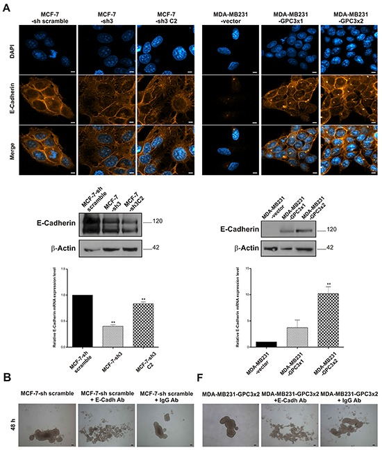 Effect of GPC3 on the expression of the epithelial marker E-Cadherin A. E-Cadherin expression was evaluated in MCF-7-sh scramble, MCF-7-sh3 and MCF-7-sh3 C2 as well as MDA-MB231-vector, MDA-MB231-GPC3×1 and MDA-MB231-GPC3×2 by IF (Magnification x1000. Scale bars 8 μm), WB and qRT-PCR. β-Actin was used as a WB internal control, while GAPDH was employed as a qRT-PCR control (**p
