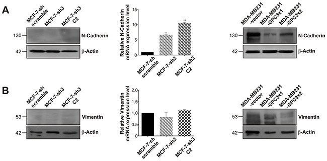 Effect of GPC3 on the expression of the mesenchymal markers N-Cadherin and vimentin A, B. WB and qRT-PCR techniques were used to analyze N-Cadherin (A) and vimentin (B) expression. For WB, β-Actin was used as an internal control and numbers on the left indicate molecular mass (kDa). For qRT-PCR, GAPDH was employed as control, and values are expressed as mean ± SD. The data are representative of three independent experiments (**p