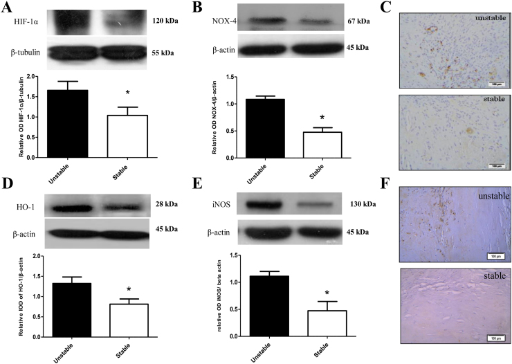 Changes in HIF-1α and its downstream targets NOX-4, HO-1 and iNOS in human atherosclerotic plaques. Representative western blots and relative densitometric analysis of Α. HIF-1α/β-tubulin B. NOX-4/β-actin C. Immunohistochemical (IHC) analysis of NOX-4 in serial sections from stable (n=8) and unstable plaques (n=8) D. HO-1/β-actin E. iNOS/β-actin F. Immunohistochemical (IHC) analysis of iNOS in serial sections from stable (n=8) and unstable plaques (n=8) (*p