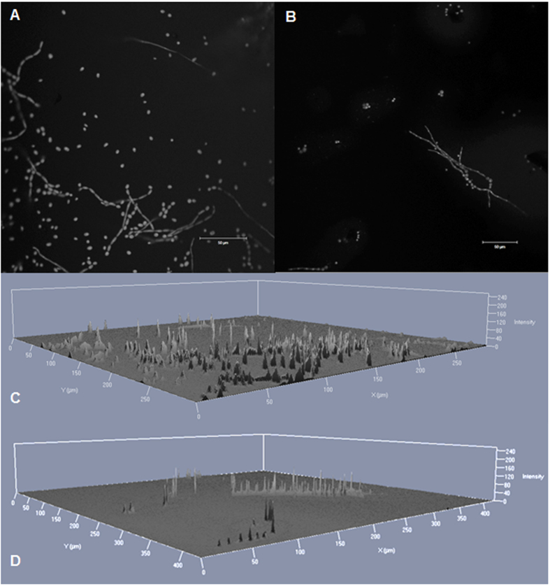Confocal laser scan microscopy images of E. dermatitidis isolate P2 (CBS 116372) biofilm, formed in the presence of antiinfective agents. Biofilm was grown for 48 hours at 35 °C in the presence of ( A , C ) 64 mg/L colistin, ( B , D ) 8 mg/L micafungin. 2D ( A , B ) and 2.5 D ( C , D ) images were taken. The DNA of the cells was stained by 0.01% acridine orange for 2 minutes. Scale bar equals 50 μm. A laser with a wavelength of 488 nm was used.