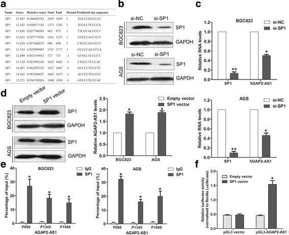 SP1 activates AGAP2-AS1 expression in GC cells. a JASPR online prediction of SP1 binding sites in the AGAP2-AS1 promoter regions. b Western blot analysis of SP1 protein levels in the AGS and BGC823 cells after transfection with SP1 siRNA. c qRT-PCR analysis of SP1 and AGAP2-AS1 expression in AGS and BGC823 cells after transfection with SP1 siRNA. d Western blot and qRT-PCR analyses of SP1 and AGAP2-AS1 expression in the AGS and BGC823 cells after transfection with SP1 vector or empty vector. e ChIP-qPCR analysis of SP1 occupancy in the AGAP2-AS1 promoter regions in the BGC823 and AGS cells. IgG was used as a negative control. f Luciferase reporter analysis of luciferase activity in the HEK293 cells cotransfected with pGL3-AGAP2-AS1 and SP1 vector or an empty vector. * P