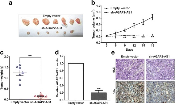 AGAP2-AS1 knockdown inhibits GC cell tumor growth in vivo. a The BGC823 cells with stable knockdown of AGAP2-AS1 were used for the in vivo tumorigenesis assays. The tumors formed from the BGC823 cells with AGAP2-AS1 knockdown and the control cells in nude mice are shown. b The tumor growth curves were measured 3 days after the injection of the BGC823 cells once the tumor had formed, and the volume was calculated every 3 days. c Tumor weights in the sh-AGAP2-AS1 and control groups are presented. d qRT-PCR analysis of AGAP2-AS1 expression levels in the tumor tissues formed from the AGAP2-AS1-downregulated cells or control cells. e Tumors formed from sh-AGAP2-AS1-transfected BGC823 cells showed lower Ki67-positive signals than tumors formed from the control cells. Upper ; hematoxylin eosin staining, Lower Ki67 immunostaining. * P
