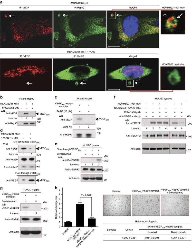 VEGF released from MVs regains its sensitivity to Bevacizumab. ( a ) Non-permeabilized MDAMB231 cells were analysed by immunofluorescent confocal microscopy using anti-VEGF and anti-Hsp90 antibodies. Top images: VEGF 90K and Hsp90 are detected on MVs (arrows). Bottom images: MDAMB231 cells treated with 10 μM 17AAG overnight were fixed and stained. Scale bar, 10 μm. Far-right: Blow-ups of the MVs. ( b ) MDAMB231 cell MVs treated without (lane 2) or with (lane 3) 17AAG at 37 °C for 2 h were lysed and immunoprecipitations were performed using a Hsp90 antibody (25 μg MV protein, each). ( c ) VEGF 90K was generated by tTG-catalysed crosslinking of rVEGF 165 , incubated with Hsp90 (30 ng), either without (lane 1) or with 17AAG (10 μM) (lane 2), at 37 °C for 1 h and immunoprecipitated using an anti-Hsp90 antibody. ( d ) MDAMB231 cell MVs treated without (lane 1) or with 17AAG (lane 2) at 37 °C for 2 h were collected on a 0.22 μm filter. The filtered MVs and the flow-through were immunoblotted. ( e ) Serum-deprived HUVECs were untreated (lane 1), or exposed to VEGF 90K (∼10 ng ml −1 ) released from 17AAG-treated MVs and present in the flow-through from the experiment shown in Fig. 5d , in the presence (lane 2) or absence (lane 3) of Bevacizumab, for 15 min, lysed and immunoblotted. ( f ) Serum-starved HUVECs, untreated (lanes 1, 2, 5 and 6) or pre-treated with 10 μM GA for 1 hour (lanes 3 and 4), were incubated without (lane 1) or with MVs (5 μg ml −1 protein) from MDAMB231 cells (lane 2), together with 200 ng ml −1 pan inactivating VEGF antibody (lane 4), 10 μM 17AAG (lane 5) or both the VEGF antibody and 17AAG (lane 6), for 15 min. Cell extracts were lysed and immunoblotted. ( g ) Serum-starved HUVECs were incubated with the VEGF 90K –Hsp90 complex (∼10 ng ml −1 ) without (lane 1) or with Bevacizumab (0.5 μg ml −1 ) (lane 2) for 15 min, lysed and immunoblotted. ( h ) Left: Relative amounts of tubulogenesis for HUVECs untreated (control; histogram 1) or treated with the VE