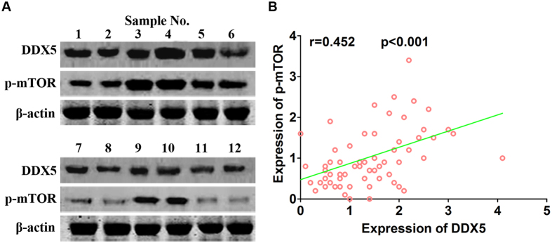Expression of DDX5 positively correlated with p-mTOR in gastric cancer specimens. ( A ) Representative images of immunoblots of DDX5 and p-mTOR(S2448) in 65 gastric cancer specimens. β-actin was used as loading control. ( B ) Correlation analysis of the relative expression of DDX5 and p-mTOR(S2448).