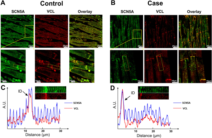 Co-localization of VCL and SCN5A in human ventricular tissue slice. ( A , B ) Immunofluorescence staining of SCN5A (green), VCL (red) and overlay channel from control and case (SUNDS patient, VCL–M94I variant carrier) human ventricular tissue slices. The second row shows a higher magnification view of the area outlined in yellow the first row. The yellow color from overlay panel indicates co-localization of VCL and SCN5A. ( C and D ) Signal intensity profile of signals from selected areas (outlined with yellow dashed rectangle in second row of ( A and B ) were calculated and plotted from control and case slices respectively. Integrity of the fluorescence signals of both SCN5A (blue line) and VCL (red line) along transverse direction was aligned and plotted.
