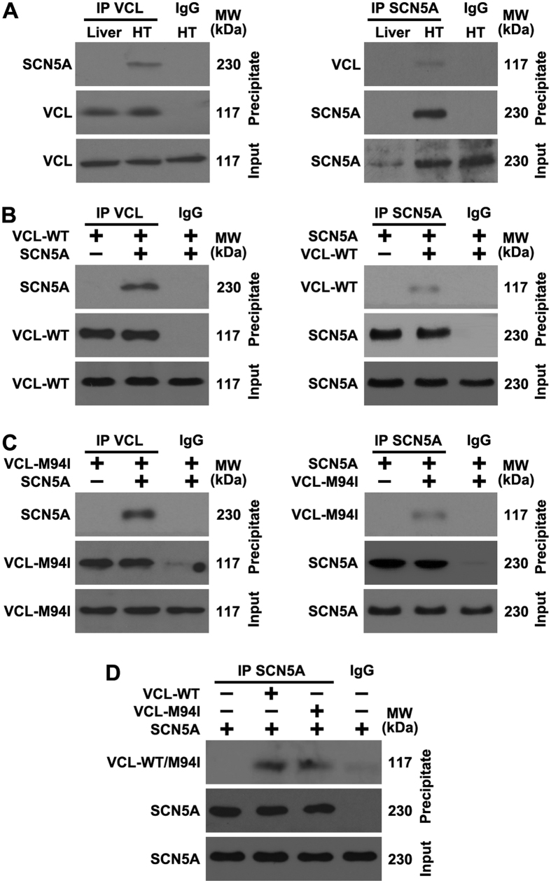VCL directly interacts with SCN5A. ( A ) Mouse liver and heart (HT) tissue lysates were immunoprecipitated (IP) using VCL or SCN5A antibody and analyzed by Western blotting using the indicated antibodies; ( B ) Wild-type VCL (VCL-WT) and SCN5A were transfected into HEK293 cells for 24 h, cell lysates were IP using VCL or SCN5A antibody and analyzed by Western blotting using the indicated antibodies; ( C ) Mutant VCL (VCL-M94I) and SCN5A were transfected into HEK293 cells for 24 h, cell lysates were IP using VCL or SCN5A antibody and analyzed by Western blotting using the indicated antibodies; ( D ) VCL-WT, VCL-M94I and SCN5A were transfected into HEK293 cells for 24 h, cell lysates were IP using VCL or SCN5A antibody and analyzed by Western blotting using the indicated antibodies. The results are representative of three independent experiments.
