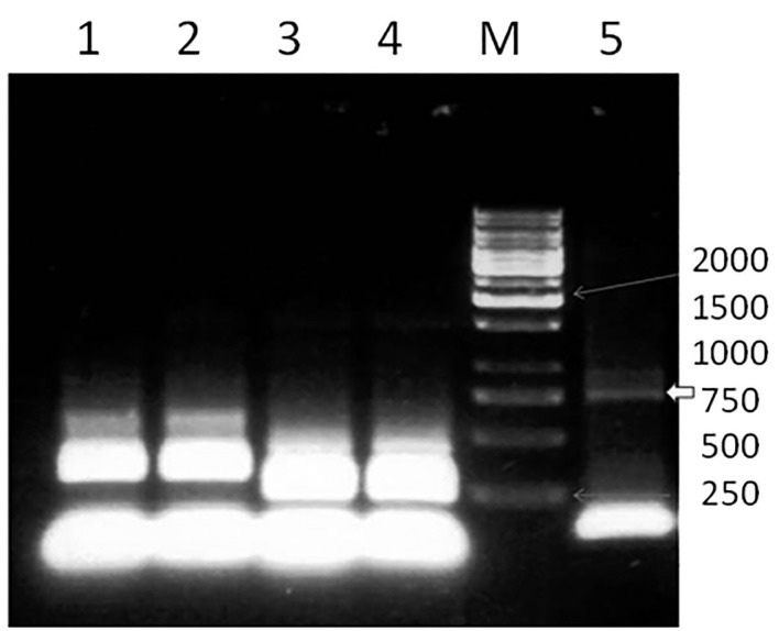 PCR analysis of the HSP70 gene. HSP70 was increased by using specific HSP70 primers. PCR amplification of HSP70 gene yielded a nearly 750-bp fragment. Lane M: a 100-bp DNA marker, lane 5: the HSP70 gene (sample 5), and lanes 1-4: negative controls