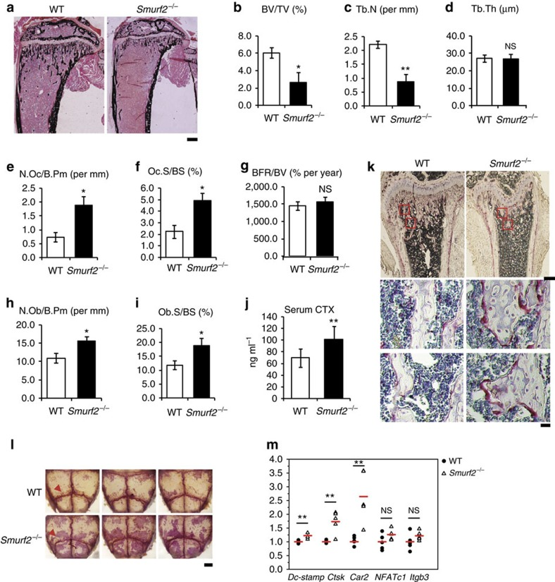 <t>Smurf2</t> −/− mice have increased bone resorption. ( a – i ) Histomorphometric analysis of proximal tibia from 5-week-old WT and Smurf2 −/− male mice for bone volume per tissue volume (BV/TV), trabecular number (Tb.N), trabecular thickness (Tb.Ths), number of osteoclasts per bone perimeter (N.Oc/B.Pm), osteoclast surface per bone surface (Oc.S/BS), bone formation rate per bone volume (BFR/BV), number of osteoblasts per bone perimeter (N.Ob/B.Pm) and osteoblast surface per bone surface (Ob.S/BS). Scale bar, 500 μm. Data represent mean±s.d. ( n =6 for each genotype, ** P