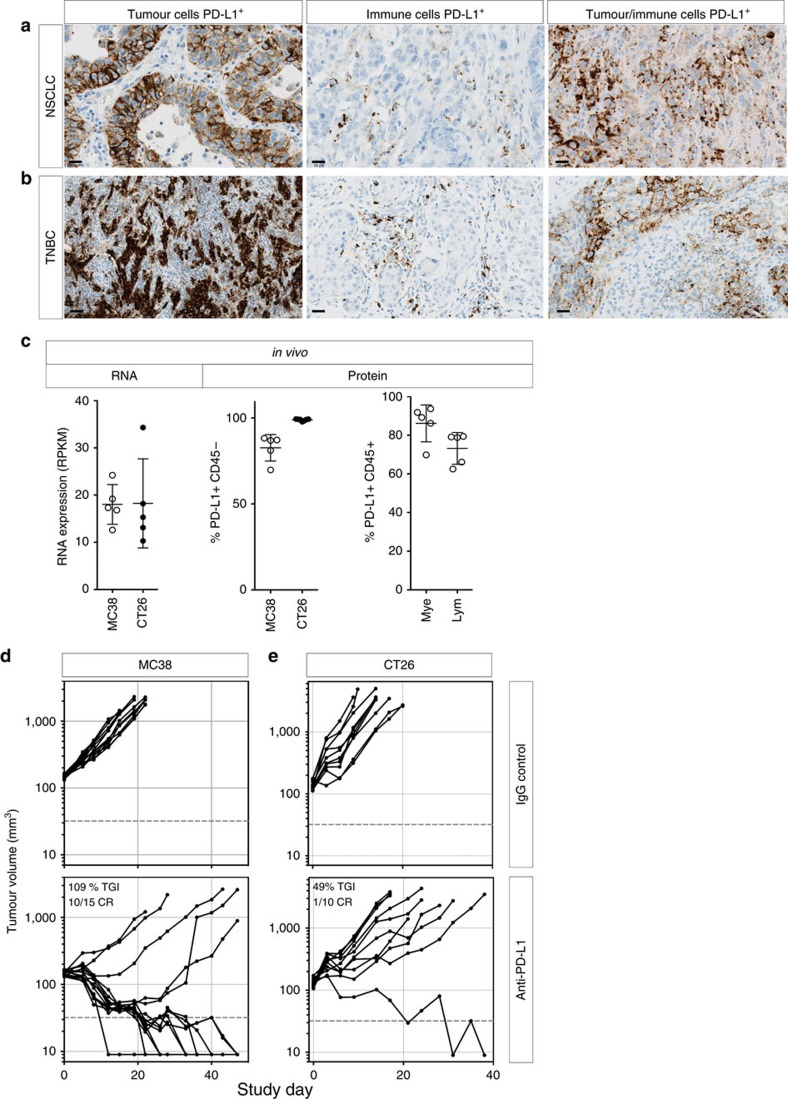 PD-L1 expression in malignant epithelial and immune cells of human tumours. IHC analysis of human non-small-cell lung cancer (NSCLC) ( a ) and triple-negative breast cancer (TNBC) ( b ) samples identified three distinct patterns of PD-L1 expression (brown) in the tumour epithelium, immune cells or both compartments. In mouse tumour models in vivo , PD-L1 RNA and surface protein expression were detectable in MC-38 or CT-26 tumour cells, as well as in myeloid (mye) and lymphoid (lym) cells ( c ). Treatment of wild-type MC-38 ( d ) or CT-26 ( e ) tumours with anti-PD-L1 blocking antibodies resulted in slowed tumour growth and tumour regressions. If not labelled in graph, data shown is from MC38 (open circles) and CT26 (filled circles). Treatment data is representative of multiple independent study repeats with the same antibody. CR, complete regression; TGI, tumour growth inhibition. Scale bar represents 20 μm. Error bars depict s.d. from the mean.