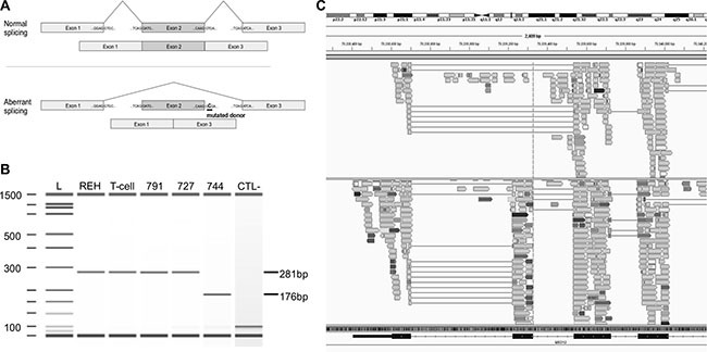 Mutation g.chrX:70339329T > C in MED12 causes the splicing of exon 2 ( A ) Schematic representation of the normal (top) and aberrant splicing (bottom) of MED12 transcripts from the normal and the identified mutant gene. In the presence of the mutation, the donor splice site of exon 2 (underlined) is skipped and exon 1 is directly spliced to exon 3, leading to an aberrant mature form of MED12 mRNA lacking exon 2. ( B ) Synthetic electrophoresis gel of MED12 PCR products (Methods). cDNAs were synthesized from mature RNA extracted from patient 744 mutated at g.chrX :70339329T > C, REH cells, mature T-cells (CD19-CD3+) isolated from cord blood samples and two T-ALL patients, WT for this position (791 and 727). Amplified fragments of 281 bp (WT samples) and 176 bp (mutated sample) were analyzed using Agilent 2100 Bioanalyzer. The 105 bp difference corresponds to the skipped exon 2. L: ladder; CTL-: negative control. ( C ) Screenshot of the Integrative Genomics Viewer (IGV) window presenting aligned RNA-seq data obtained from cases 744 (top) and a third T-ALL WT patient (693, bottom). The dotted line is centered on the donor splice site of exon 2 of MED12 (g.chrX:70339329). Case 744 shows aberrant splicing of exon 2, while 693 was WT for this position and shows a mature transcript that includes the exon 2.