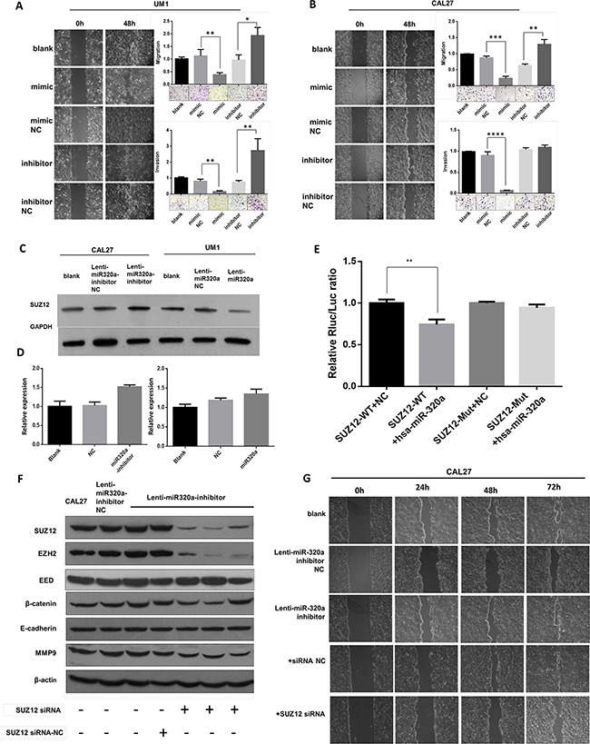 miR-320a suppresses migration and invasion of TSCC cells by targeting Suz12 in vitro A. Wound healing and transwell assays of UM1 after transient <t>transfection.</t> B. Wound healing and transwell assays of Cal27 after transient transfection. C. Western blot of Suz12 in stable transfected Cal27 and UM1 cell lines. D. Suz12 mRNA in stable transfected Cal27 and UM1 cell lines. E. Dual-luciferase reporter gene array. F. Western blot assays of Cal27 after co-transfection of Suz12 siRNA. G. Wound healing of Cal27 after co-transfection of Suz12 siRNA. * P