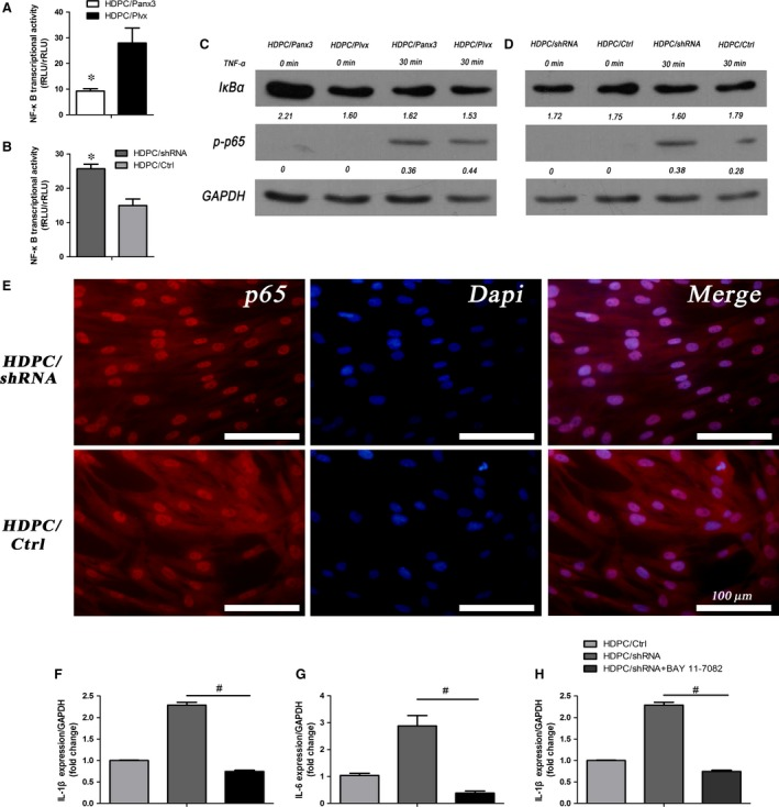 Panx3 regulates NF ‐κB signalling pathway. ( A, B ) NF ‐κB transcriptional activities in HDPC /Panx3, HDPC /Plvx, HDPC /sh RNA and HDPC /Ctrl groups were measured using dual‐luciferase reporter system. * P