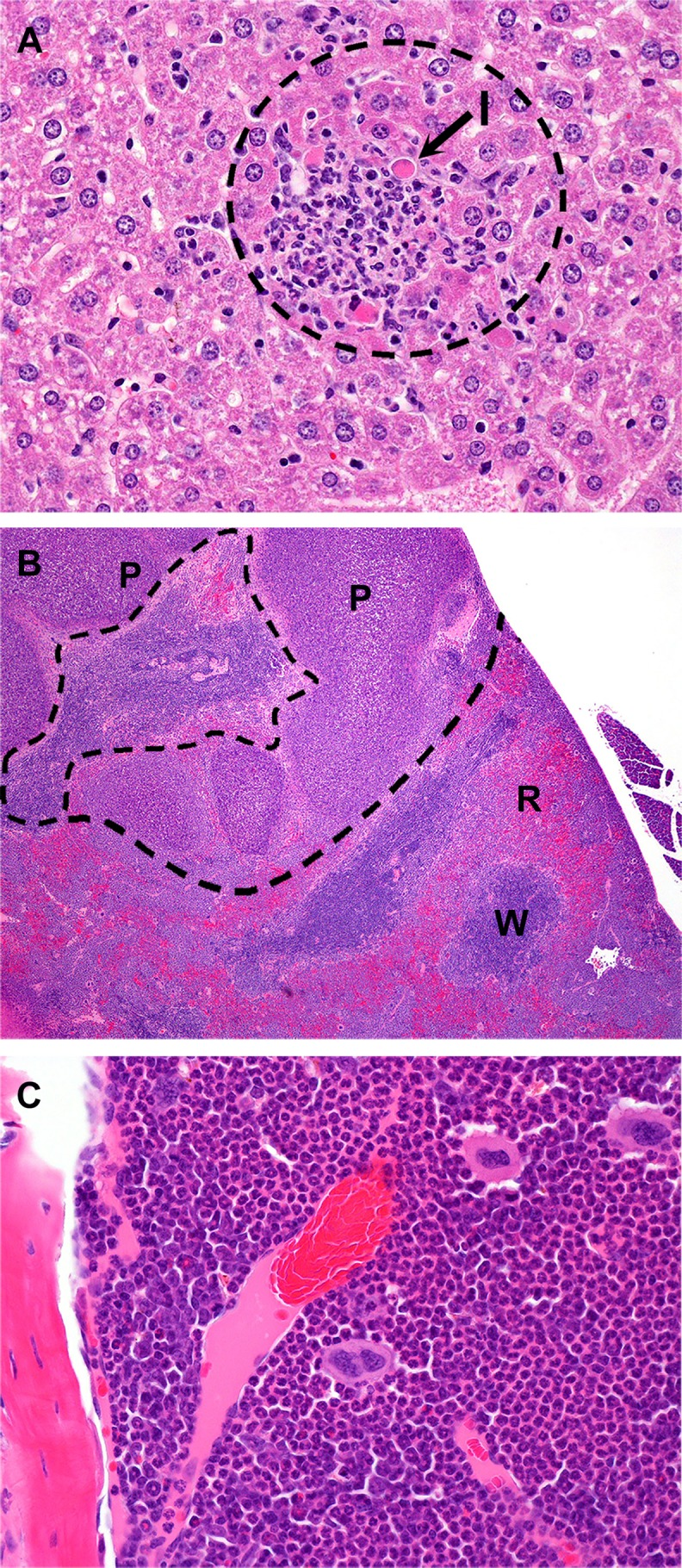 Histopathology observed in mice following IP challenge with B . pseudomallei K96243. (A) C57BL/6 mouse euthanized on day 2 post-infection Liver: Random foci of neutrophilic inflammation with individual hepatocyte necrosis/apoptosis (arrow). I = inflammation; H E, 400X. (B) BALB/c mouse euthanized on day 20 post-infection with rear-leg paralysis. Spleen: Multiple pyogranulomas effacing red and white pulp; H E, 40X. (C) C57BL/6 mouse euthanized on day 22 post-infection. Femoral bone marrow: Myeloid hyperplasia with predominance of neutrophils. H E, 400X. P = pyogranuloma; R = red pulp; W = white pulp;