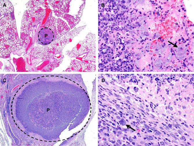Lung histopathology observed in mice following exposure to aerosolized B . pseudomallei K96243. (A) C57BL/6 mouse euthanized on day 2 post-infection. Lung: Multifocal random (embolic) suppurative pneumonia. H E 20X. (B) BALB/c mouse euthanized on day 4 post-infection. Lung: Suppurative inflammation and alveolar necrosis with numerous short bacilli (arrow). P = pyogranuloma; H E 600X. (C) BALB/c mouse euthanized on day 7 post-infection. Lung: Focally extensive pyogranuloma. P = pyogranuloma; H E 40X. (D) Lung: Periphery of pyogranuloma with MNGC macrophage (arrow) formation. H E 600X.