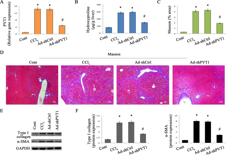 Silencing PVT1 contributes to the suppression of liver fibrosis in CCl 4 mice A. Relative gene expression of PVT1 was analyzed by qRT-PCR. B. The level of hydroxyproline was detected in CCl 4 mice after Ad-shPVT1 treatment. (C and D) Accumulation of collagen was assessed by Masson staining. Scale bar, 100 μm. (E and F) The protein levels of α-SMA and type I collagen were measured by Western blotting. GAPDH was used as internal control. * P