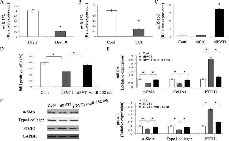 miR-152 is involved in the effects of PVT1 on HSC activation Primary 2-day-old HSCs were transfected with siPVT1 for 48 h and then treated with miR-152 inhibitor for additional 48 h. The level of miR-152 was detected by qRT-PCR in primary HSCs A. and CCl 4 mice B. . C. The level of miR-152 was measured by qRT-PCR in primary HSCs transfected with siPVT1. D. Cell proliferation was determined by the EdU assay. The mRNA E. and protein F. expression levels of α-SMA, type I collagen and PTCH1 were analyzed by qRT-PCR and Western blotting, respectively. GAPDH was used as internal control. * P