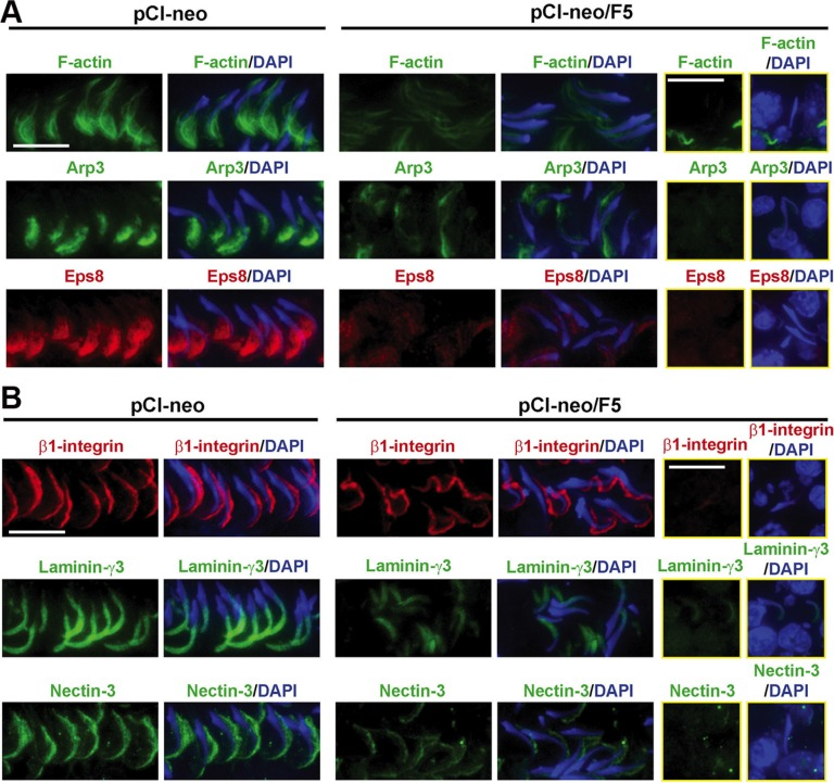 Overexpression of F5-peptide perturbs F-actin organization through changes in the spatial expression of actin regulatory proteins, which in turn disrupts apical ES protein distribution in adult rat testes in vivo Frozen sections of testes following transfection of pCI-neo/F5 vs. pCI-neo (vector alone, control) were stained for F-actin, Arp3, and Eps8; as well as integral membrane proteins at the apical ES: β1-integrin (Sertoli cell-specific) vs. spermatid-specific laminin-γ3 chain and nectin-3. Spermatids that were entrapped inside the seminiferous epithelium were shown in the two rectangular columns on the right. Cell nuclei were visualized by DAPI. ( A ) At stage VII, F-actin, actin regulatory proteins Arp3 and Eps8 were prominently localized to the concave side of spermatid heads in control testes. Overexpression of F5-peptide, however, induced mis-organization of F-actin which was considerably diminished at the apical ES found in elongated spermatids located near the tubule lumen or embedded inside the epithelium. These changes in F-actin organization were the result of changes in spatial expression of Arp3 and Eps8 since these proteins no longer restricted to the concave side of spermatids, and their expression was considerably diminished. Furthermore, many spermatids had lost their polarity since they no longer pointed toward the basement membrane as found in control tubules. For spermatids entrapped inside the epithelium in these tubules, the fluorescence signals of Arp3 and Eps8 were also considerably diminished after F5-peptide overexpression, illustrating apical ES in these spermatids was also disrupted. Scale bar, 10 μm, which applies to other micrographs. ( B ) Apical ES adhesion proteins β1-integrin and nectin-3 were localized at the convex side of spermatid heads whereas laminin-γ3 chain was at the tip of spermatid heads in normal testes. Following F5-peptide overexpression, β1-integrin was grossly mis-localized since some fluorescence signal was found on the concave side of spermatid heads; whereas laminin-γ3 chain and nectin-3 were also considerably down-regulated and mis-localized, thereby impeding spermatid adhesion, leading to germ cell exfoliation as noted in Figure 3 . Scale bar, 10 μm, which applies to other micrographs in the same panel.