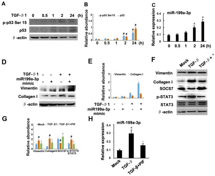 Pifithrin-α suppressed TGF-β1-induced STAT3 activation and miR-199a-3p expression. Cultured HK-2 cells were treated with 10 ng/ml TGF-β1 or 10 μM pifithrin-a for 0 to 24 h or transfection of miR-199a-3p or negative control analog or SOCS7 siRNA, followed by immunoblot for p-STAT3, STAT3, and ECM genes, and real time PCR for miR-199a-3p. Immunoblot ( A ) analysis of p-p53 Ser 15 and p53, densitometry ( B ) of proteins signals on immunoblots, and real time PCR analysis ( C ) of miR-199a-3p after indicated time point of treatment with TGF-β1. Relative protein levels ( D ) of vimentin, COL1, and β-actin 24 h after transfection of miR-199a-3p analog (100 nM) or miR analog negative control (miR-ANC) with or without TGF-β1 treatment, densitometry ( E ) of proteins signals on immunoblots. Immunoblot analysis ( F ) of vimentin, COL1, SOCS7, p-STAT3, STAT3 and β-actin, densitometry ( G ) of proteins signals on immunoblots, and real time PCR analysis ( H ) of miR-199a-3p 24 h after TGF-β1 alone or TGF-β1 plus pifithrin-a treatment. Data were expressed as means ± sd (n = 6); # p