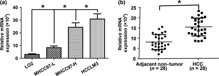 Sialyltransferase ST 3 GAL 6 was upregulated in human hepatocellular carcinoma ( HCC ) tissues and cell lines. (a) Differences in expression in HCC cell lines ( MHCC 97‐H, MHCC 97‐L, and HCCLM 3) and a normal human hepatic cell line ( LO 2). (b) ST 3 GAL 6 (measured by <t>SYBR</t> Green quantitative real‐time <t>PCR</t> ) was upregulated in HCC tissues compared with the matched adjacent non‐tumorous liver tissues. The central horizontal line represents the mean value. * P