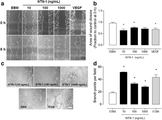 Netrin-1 induces angiogenesis in vitro in HUVEC. a Netrin-1 (NTN-1) influence on HUVEC cell migration was determined using scratch assay, where cells were serum-starved and treated for 8 h with different recombinant human NTN-1 concentrations, as indicated. Endothelial basal media (EBM) was used as internal reference and recombinant human vascular endothelial growth factor (VEGF) (40 ng/mL) was used as a positive control. Representative pictures of each condition are shown (amplification × 10). b Quantified results correspond to the mean ± S.E.M. ( n = 3, * p