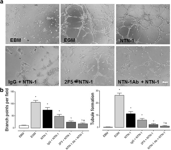 Netrin-1 promotes angiogenesis in HUVEC. a Representative images of HUVEC tubule assay. Cells were exposed for 4 h to endothelial basal media (EBM), endothelial growth media (EGM), IgG (internal antibody control, 2 μg/mL), 2F5 [a drug targeting Netrin-1 (NTN-1), 2 μg/mL] and anti-NTN-1 antibody (R D Systems, 2 μg/mL), in absence or presence of recombinant human NTN-1 (10 ng/mL), scale bar = 15 μm. b Quantified data correspond to the mean ± S.E.M. ( n = 4, * p