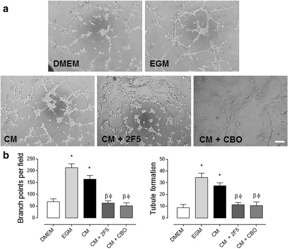 Netrin-1, secreted by WJ-MSC, promotes angiogenesis in HUVEC. a Representative images of HUVEC tubule assay treated as indicated. Cells were exposed for 4 h to DMEM, endothelial growth media (EGM), WJ-MSC-conditioned media (CM), 2F5 [a drug targeting Netrin-1 (NTN-1), 0.5 μg/μL] and CBO (a VEGF-receptor inhibitor, 20 μM), scale bar = 15 μm. b Quantified data correspond to the mean ± S.E.M. ( n = 3, * p