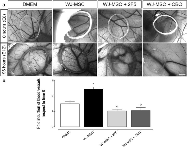 Netrin-1 contributes to angiogenesis in vivo in a CAM assay. a Representative images of distinct experimental approaches on CAM: DMEM (20 μL), Wharton's jelly-derived mesenchymal stem cells (WJ-MSC) (1.5*10 6 ), 2F5 [a drug targeting Netrin-1 (NTN-1), 0.5 μg/μL] and CBO (a VEGF-receptor inhibitor, 50 μM), using for each condition approximately 15 eggs (scale bar = 1 mm). b Quantification of angiogenesis after 4 days of incubation in experimental conditions as indicated. Data correspond to the mean ± S.E.M. (WJ-MSC, n = 5, * p