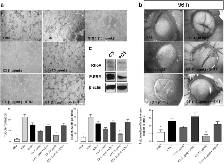 RhoA/ROCK pathway contributes to angiogenesis in vitro and in vivo in a Netrin-1-independent manner. a Representative images of HUVEC tubule assay. Cells were exposed for 4 h to endothelial basal media (EBM), endothelial growth media (EGM) and exoenzyme C3 transferase (Cytoskeleton, Inc., 1–1.5 μg/mL), in absence or presence of recombinant human Netrin-1 (NTN-1) (10 ng/mL). The graphs shown below represent quantified data corresponding to the mean ± S.E.M. [ n = 3, * p