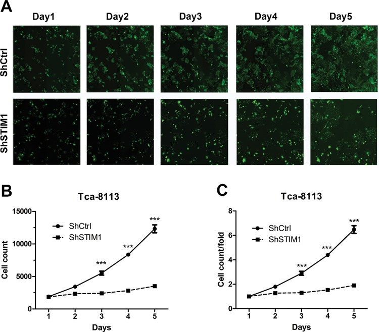 STIM1 knockdown inhibits Tca-8113 cell proliferation ( A ) Representative images of Tca-8113 cells infected with shCtrl (top) and shSTIM1 (bottom) via multiparametric HCS every day for 5 days. ( B – C ) STIM1 knockdown represses cell proliferation of Tca-8113 cells. Tca-8113 cells infected with shCtrl and shSTIM1, and cell number was analyzed everyday by HCS.